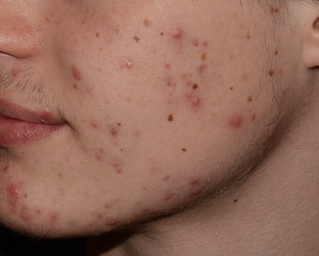 10 tips on facial skin care for acne