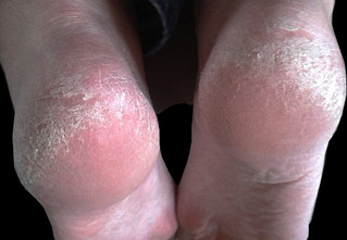 Tip of the week - Dry Cracked Heels.