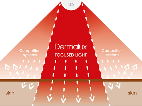 The Benefits of Dermalux LED Light Therapy.