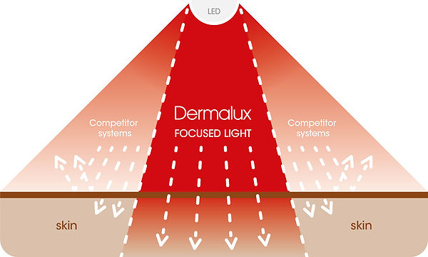 DERMALUX-New Focused Light Diagram-200x1