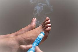 Moxibustion to turn breech presentation