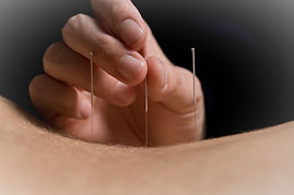 Acupuncture to back