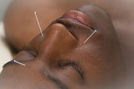 Acupuncture to face