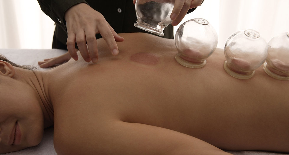 cupping therapy being performed on somebody's back