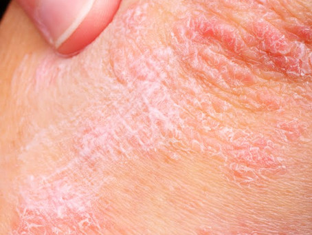 Treating Psoriasis with Acupuncture - Ancient Chinese Medical Knowledge in the Modern World