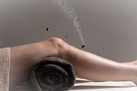 Needle moxibustion to knee