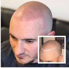 SCALP_edited.png