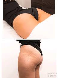 stretch mark 1.jpg