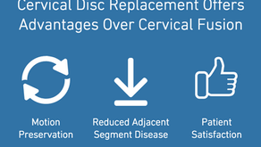 Could Cervical Disc Replacement Be An Option For You?