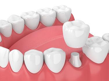 Dental-Crown.jpeg
