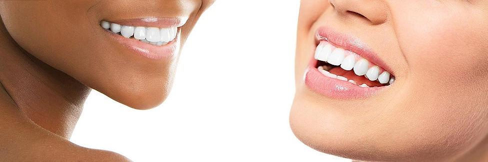 teeth-whitening-header.jpg