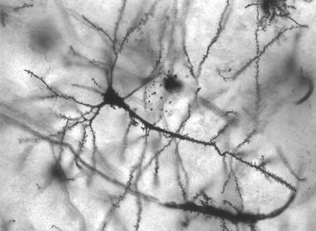 אפילפסיה – כל מה שצריך לדעת