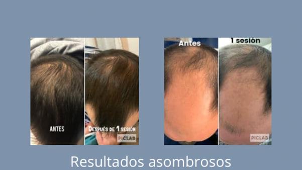 Plasma Rico en Plaquetas alopecia