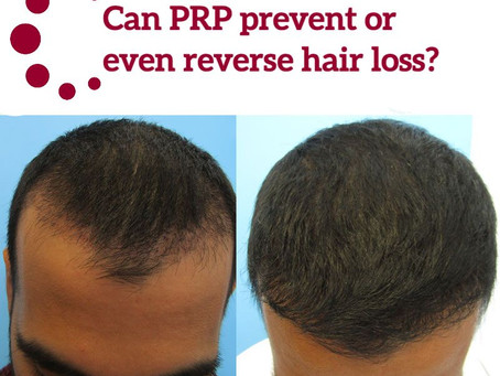 Can PRP prevent or even reverse hair loss?