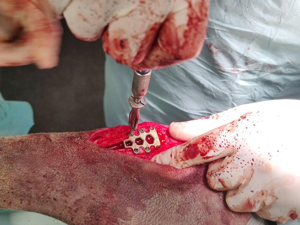 Het implantaat in het gewricht