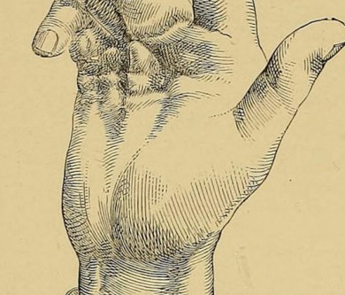 Dupuytren's Contracture and Cannabis