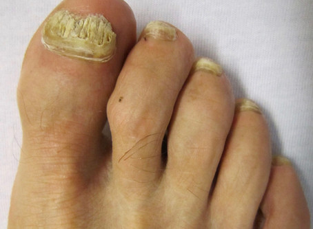 Foot Nail Fungus is Stubborn, Ugly, and Pernicious