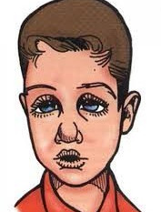 As consequências da respiração pela boca