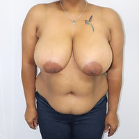 Mastopexy Reduction Before 209
