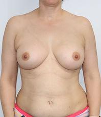 Dr John McHugh Breast Augmentation A321