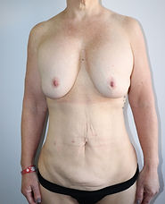 Before Radical Abdominoplasty + Remove a