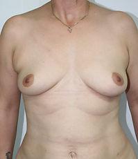 Dr John McHugh Breast Augmentation B4321