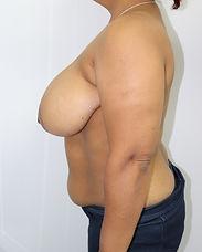 773 Before Breast Reduction 2.JPG