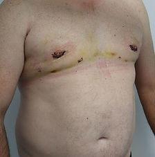 Dr John McHugh Gynecomastia 227 After_ed