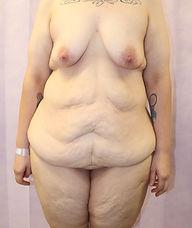 Abdominoplasty BEFORE 433