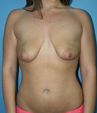 Dr John McHugh Penrith Breast Augmentati
