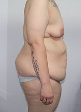 Abdominoplasty BEFORE 432