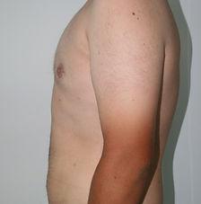 Gynecomastia cosmetic surgeon Penrith a4