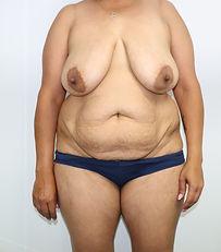 Before Abdominoplasty + Reduction mastop