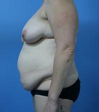 Abdominoplasty Dr John McHugh Cosmetic S
