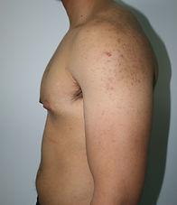 Gynecomastia Dr John McHugh Penrith Cosm
