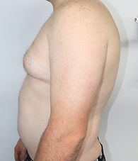 Dr John Mchugh Gynecomastia cosmetic sur