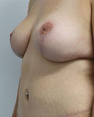 Breast Aug Mastopexy Abdominoplasty A323