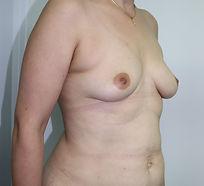 Dr John McHugh Breast Augmentation B4322