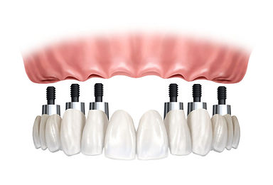 implante 2.jpg