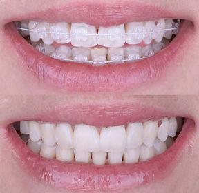 ortodontia (1).jpg