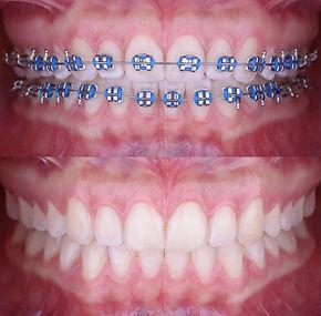 ortodontia (2).jpg