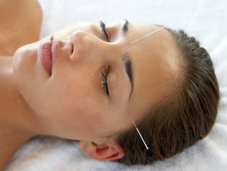 Acupuncture: An Effective Way to Treat Migraines