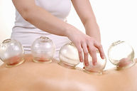 cupping therapy on back