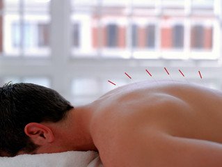 Acupuncture Treatment for Fibromyalgia Syndrome