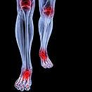 Physio-knee-angle.jpg
