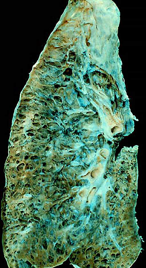Autopsy sample showing the final stage of a lung disease known as pulmonary fibrosis