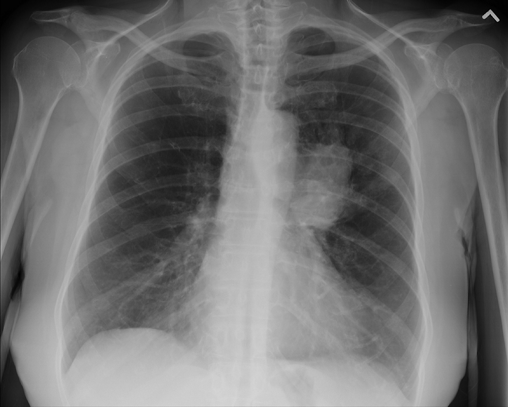 X-ray radiograph of small cell carcinoma in the lung on the right