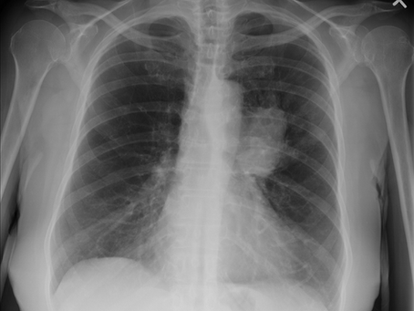 Lungs: The Forgotten Organ