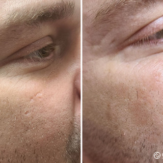 Scar Reduction Therapy