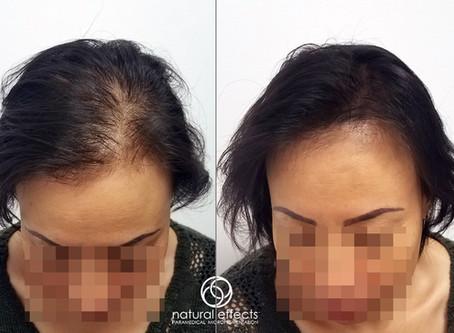 Hair Density Treatments vs. Hair Transplants